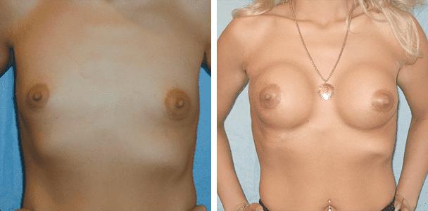 Причины и лечение мастоптоза