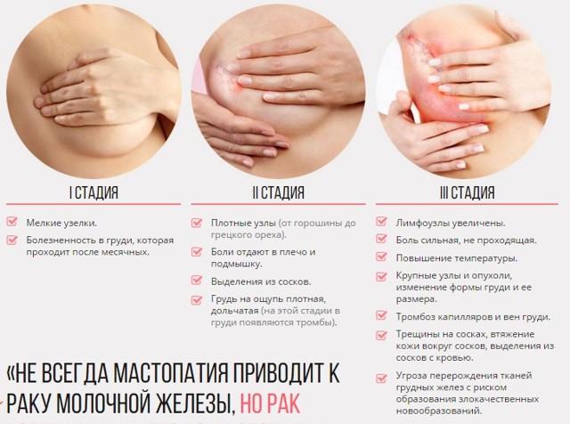 Фиброзная мастопатия