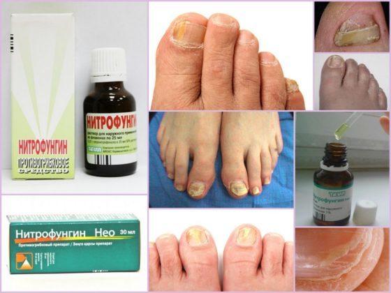 Как использовать нитрофунгин от грибка ногтей
