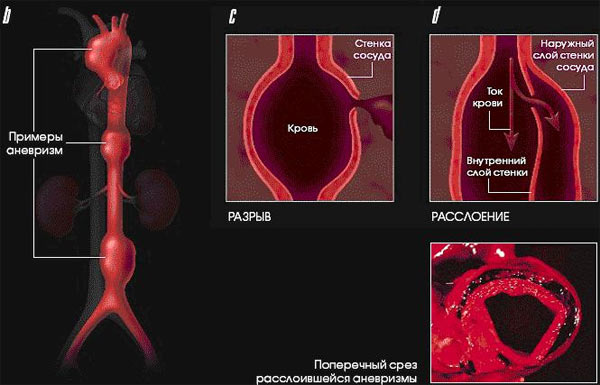 Аневризма аорты - осложнения, диагностика и лечение