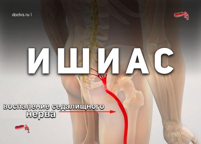 Лечение защемленного седалищного нерва – препараты