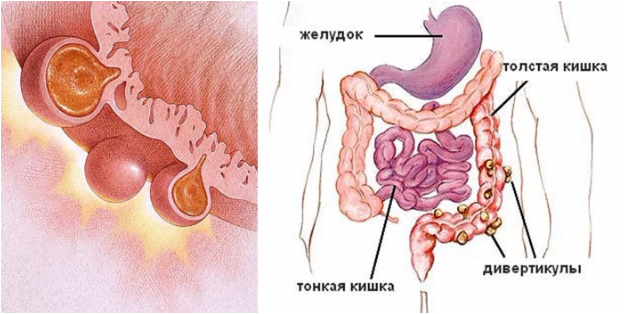 Дивертикулез толстого кишечника — симптомы и лечение, диета, осложнения