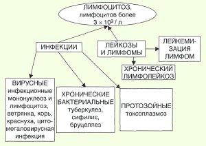 Лимфоцитоз: причины, формы, течение и проявления, диагностика, лечение