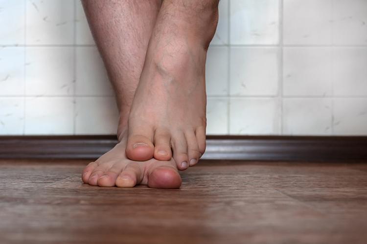 Грибок стопы – виды, симптомы, признаки, лечение, профилактика