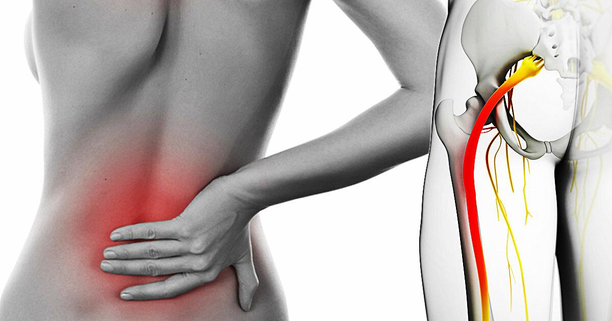 Симптомы и лечение в домашних условиях защемления седалищного нерва
