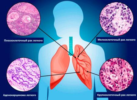 Патогенез и варианты рака легкого