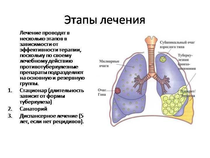 Лечение туберкулеза легких народными методами