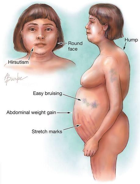 Синдром иценко-кушинга: причины, признаки, симптомы, лечение