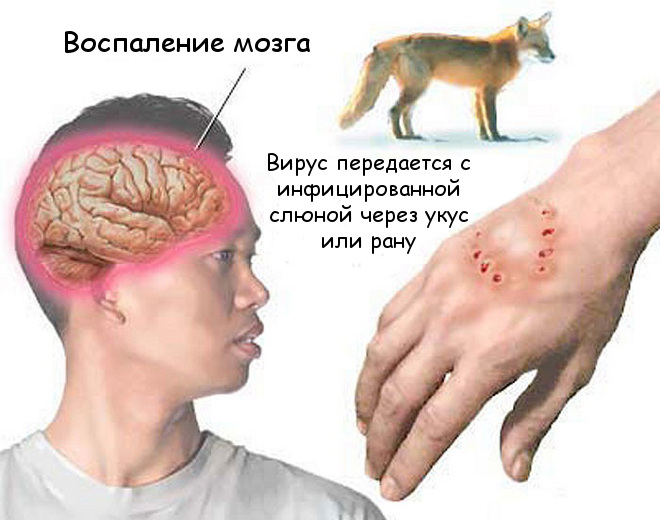 Бешенство у человека. симптомы и лечение, инкубационный период, прививки
