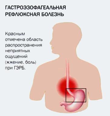 Гастроэзофагеальная рефлюксная болезнь: причины, лечение, профилактика, диагностика, симптомы