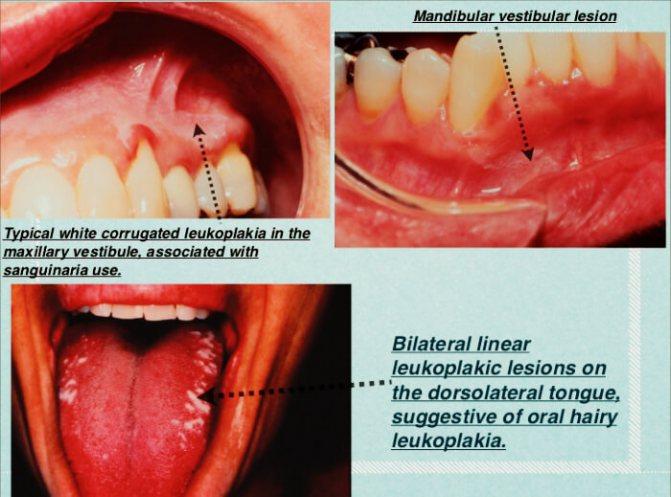 Грибок в горле – причины появления, особенности терапии, основы эффективного лечения