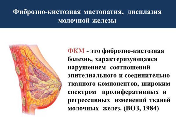 Мастопатия молочной железы: причины, симптомы, лечение