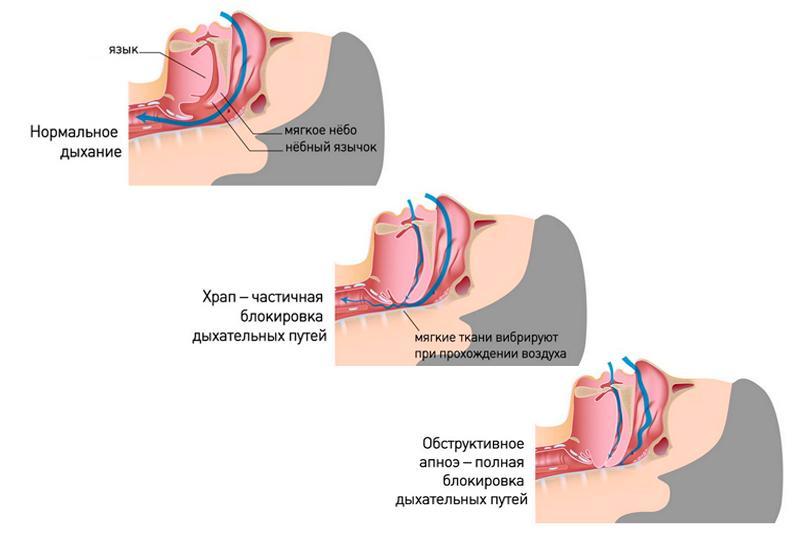 Синдром апноэ сна: развитие, симптомы, диагностика, как лечить
