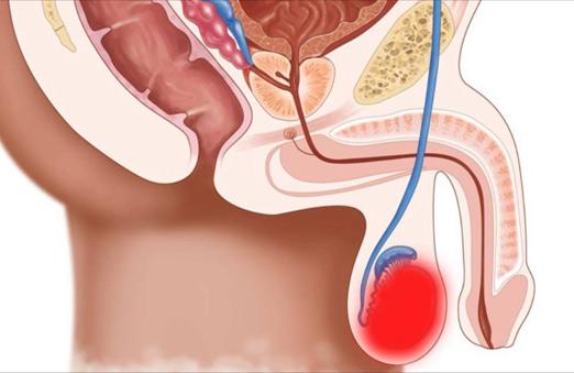 Кашель при онкологии: причины и средства для борьбы с ним