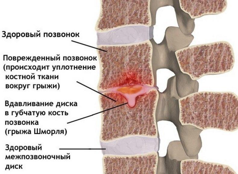 Узлы шморля поясничного отдела позвоночника лечение