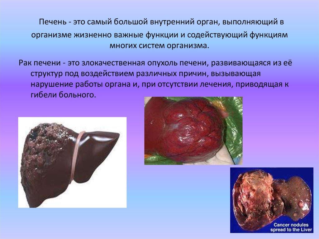 Диагностика и лечение кавернозной гемангиомы печени