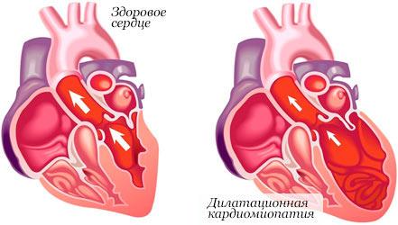 Кардиалгия: причины и формы, симптомы, диагноз, лечение