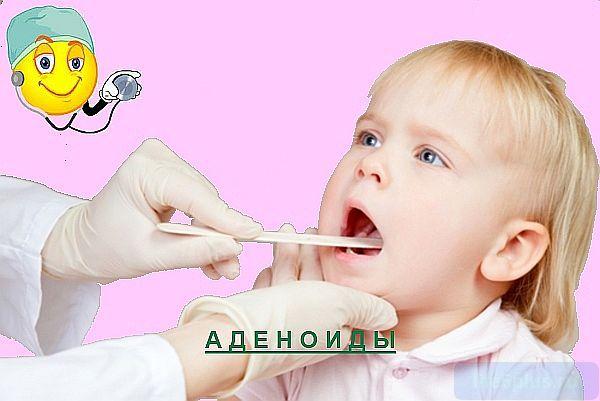 Кашель при аденоидите 2 степени у ребенка