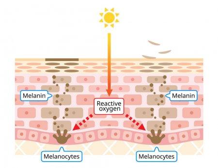 Меланоцитов - melanocyte