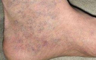 Депигментация кожи про причины, лечение