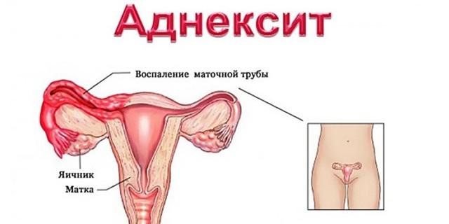 Хронический аднексит – симптомы, лечение, обострение
