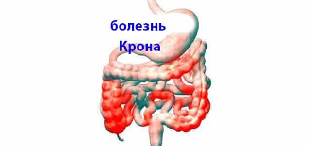 Эрозивный колит кишечника - причины, симптоматика, лечение и диета
