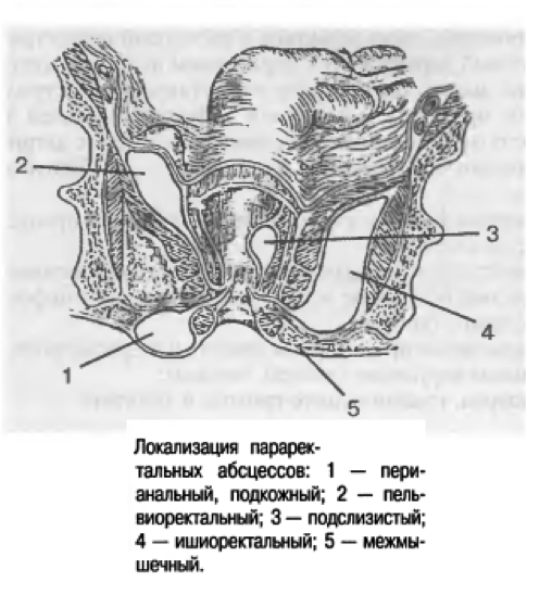 Абсцессы прямой кишки