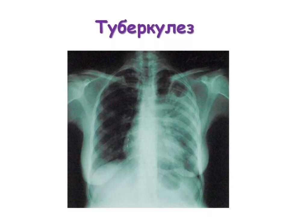 Симптомы туберкулеза легких у взрослых, диагностика и принципы лечения