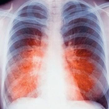 Может ли туберкулез без лечения стать опасным для общества?