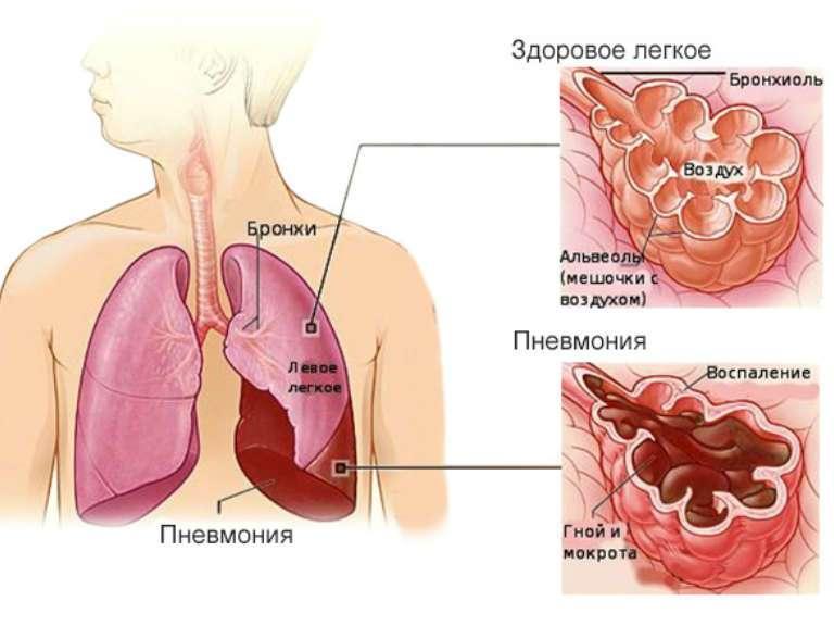 Боль в груди при пневмонии и в горле – больно дышать при воспалении легких