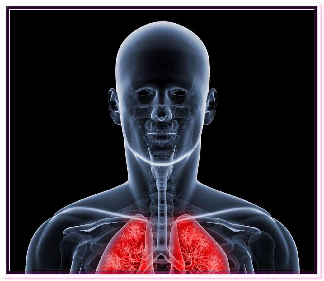Обструктивный бронхит — что это такое, симптомы у взрослых, причины, лечение острой и хронической формы