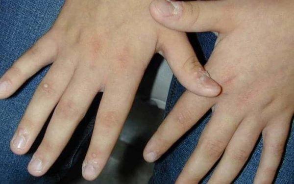 Вирусные бородавки: причины появления и способы лечения