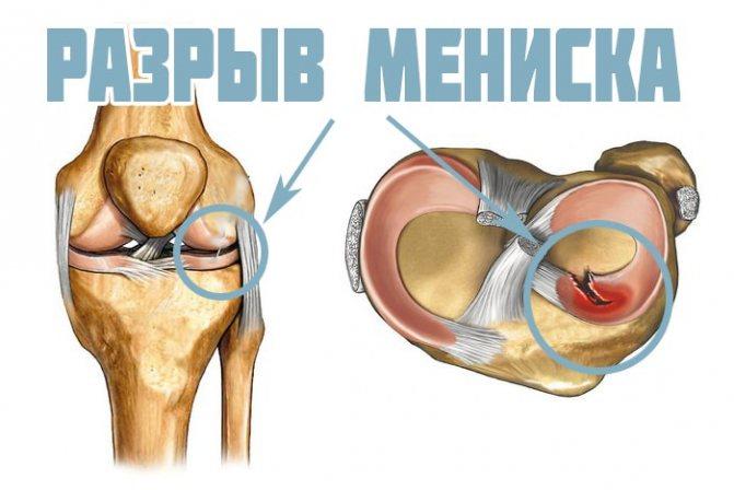 Разрыв и повреждение мениска. причины, симптомы, первая медицинская помощь и реабилитация :: polismed.com