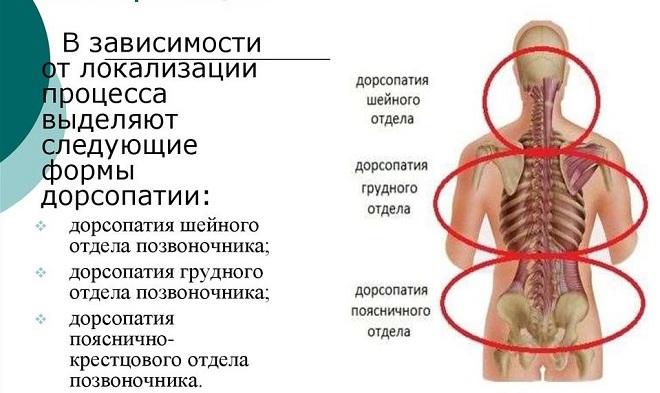 Дорсопатия поясничного отдела позвоночника: что это, причины и лечение | все о суставах и связках