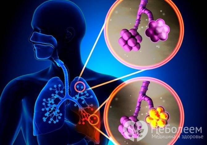 Операция при деструктивной пневмонии