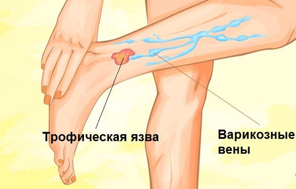 Лекарства от трофических язв на ногах