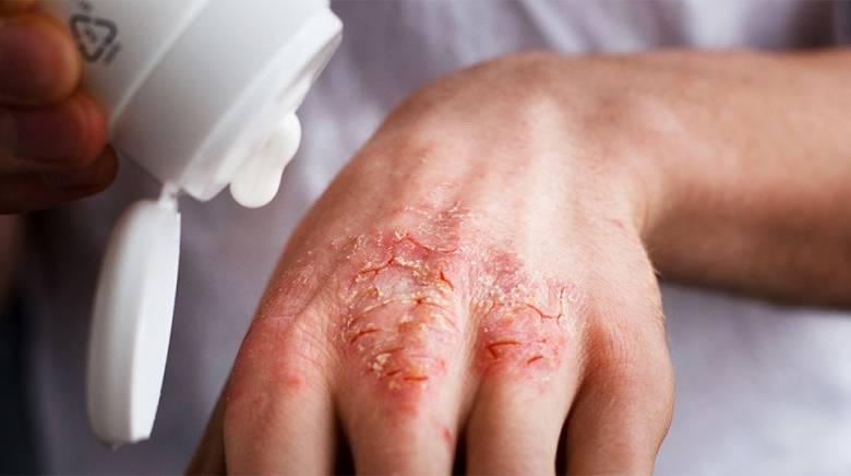 Экзема на пальцах рук – как избавиться от экземы   derma-expert.ru