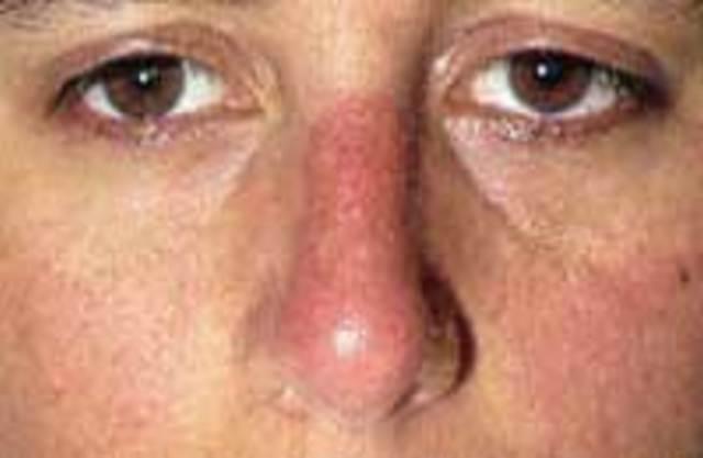 Системная красная волчанка — симптомы (фото), лечение и препараты, прогноз