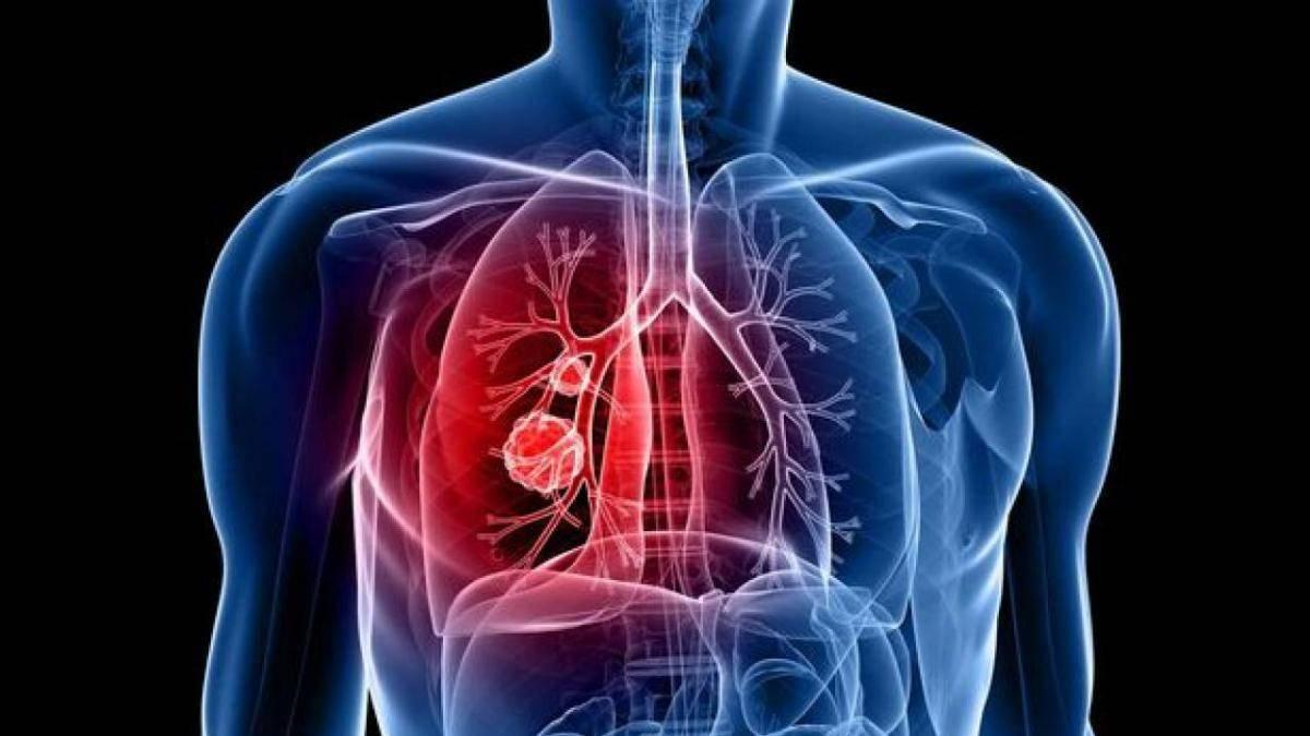 Реальность или вымысел: когда возможно домашнее лечение туберкулеза?