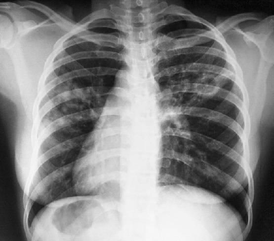 Как проявляется и как лечить детский туберкулез: симптомы и первые признаки