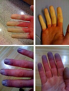 Синдром рейно. причины, симптомы и признаки, диагностика и лечение болезни :: polismed.com