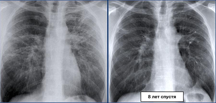 Фиброз легких - что это такое? фото, симптомы и как лечить  | здрав-лаб