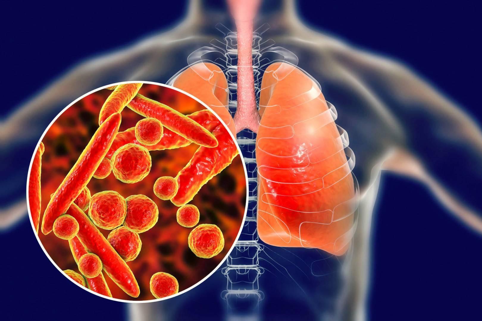 Как отличить бронхит от пневмонии – симптомы у взрослых и детей