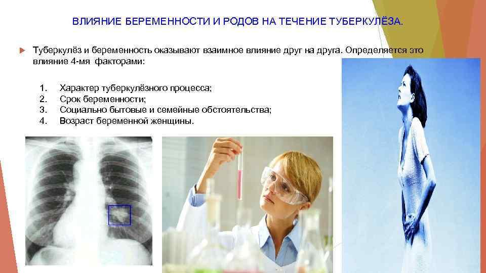 Развитие туберкулеза у беременных