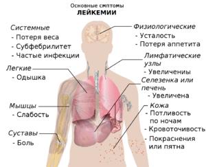 Как распознать лейкемию по анализу крови