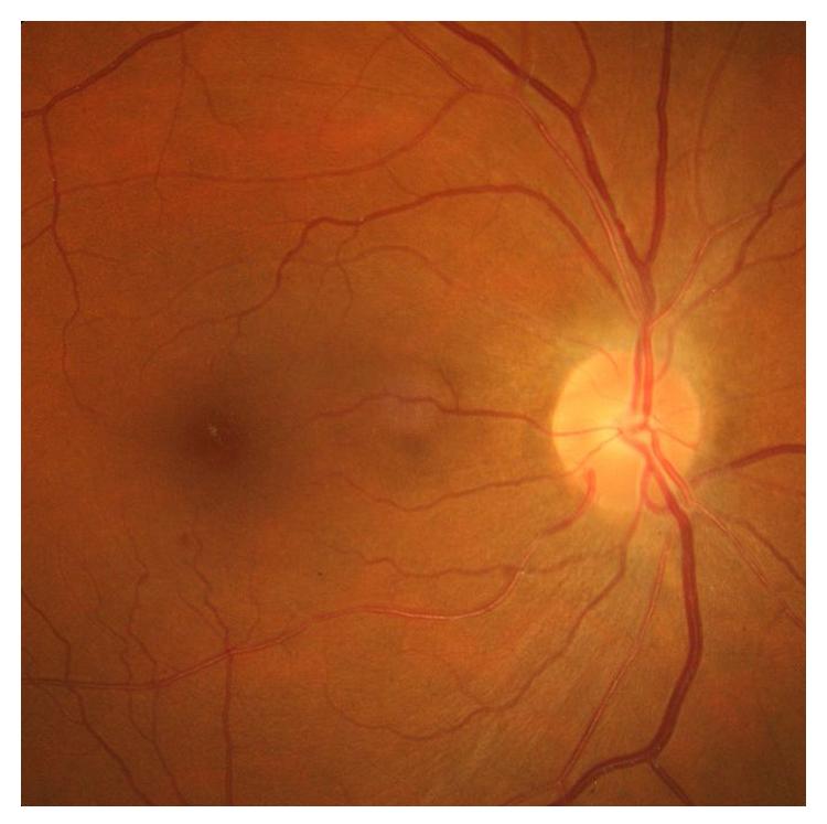 Операция при отслоении сетчатки глаза