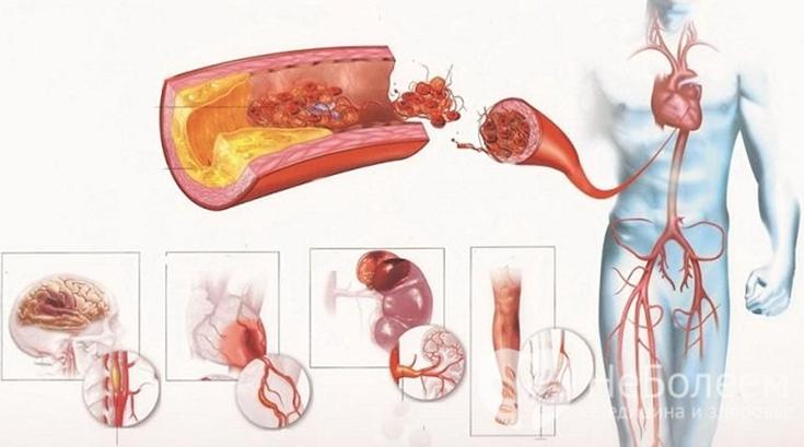 Аневризма брюшной и грудной аорты