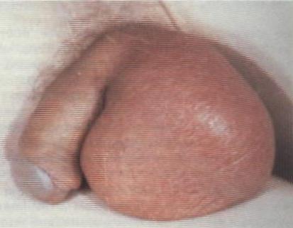 Туберкулез в половых органах женщин и мужчин