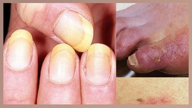 Микосептин от грибка ногтей и стопы