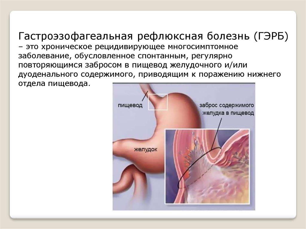 Гастроэзофагеальная рефлюксная болезнь: симптомы, лечение, диагностика